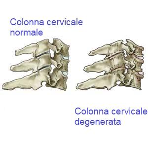 Osteochondrosis di trattamento di reparto lombare denasy