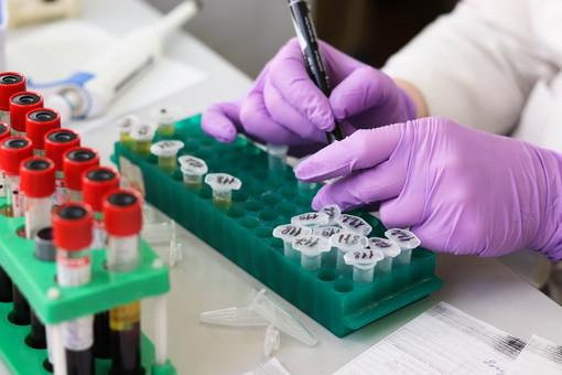 Regione: il progetto di valutazione dell'esposizione del personale sanitario al nuovo coronavirus attraverso test sierologico è operativo