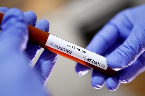 Coronavirus, 14 nuovi casi nell'imperiese. Lieve aumento in Liguria del tasso di positività (3,30%)