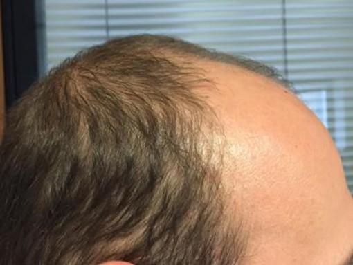 Ti mancano i tuoi capelli? Scegli: tricopigmentazione permanente o temporanea