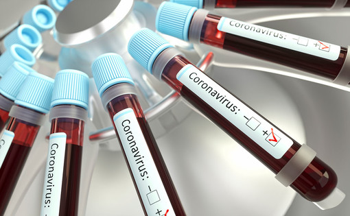 Coronavirus, 16 nuovi casi positivi in Liguria. Due dei quali sono in provincia di Imperia dove si registra anche un ricovero in più