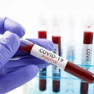 Coronavirus: altri 97 nuovi positivi in Liguria di cui 11 in provincia di Imperia, due morti nello spezzino