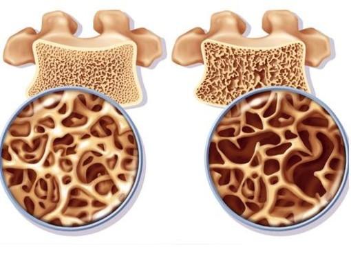 Fratture vertebrali osteoporotiche. Il parere del chirurgo Marco Mannino autore della rubrica Dica33